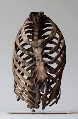 Korsettskadd brystkasse fra 1800-tallet. London. Hunterian Collection, Royal College of Surgeons, London via The Chirurgeon's Apprentice.
